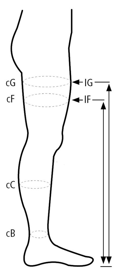 Open-toed compression stockings, stay-up 15-21 mmHg